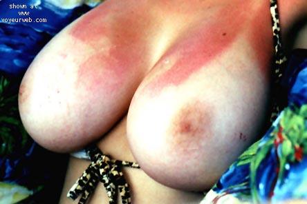 Pic #1 - OTL Breasts