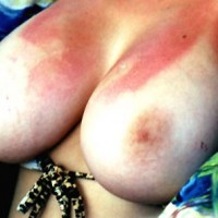 OTL Breasts