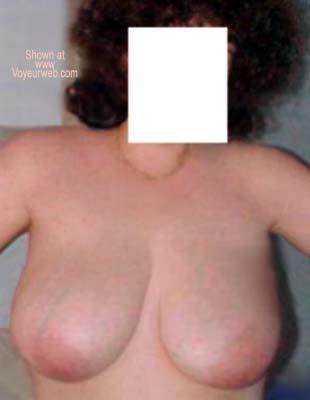 Pic #6 - Pregnancy Study