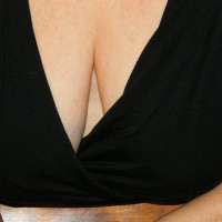 Breast Perspective