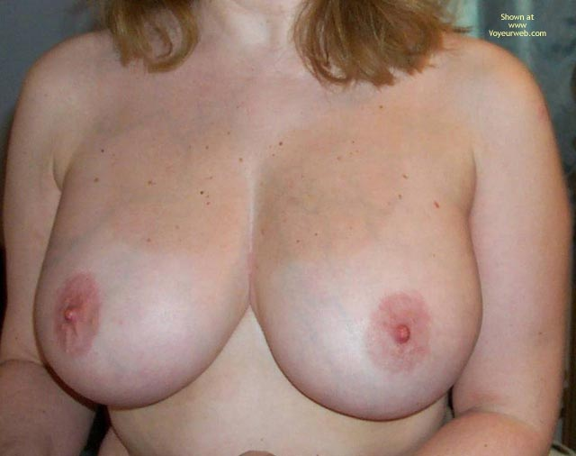 Pic #2 - Breasts