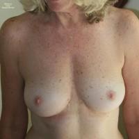 Freckles I