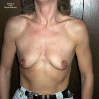 Topless Amateur:Before And After
