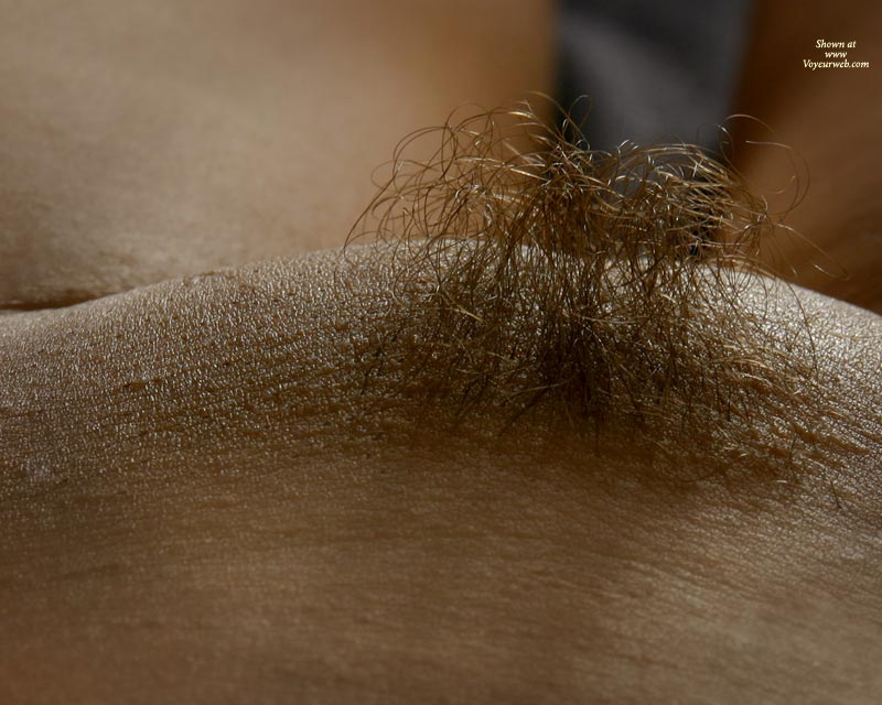 Hairy pubic mound