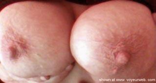 Pic #3 - Nipples Funshine/Sunshine