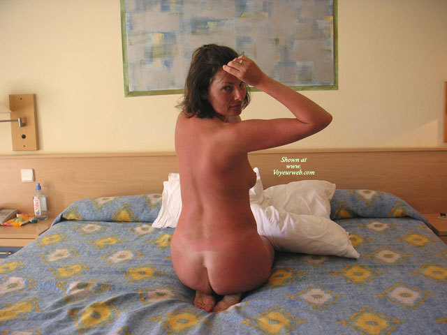 Pic #1 - Sunburned Nude Wife On Bed - Brown Hair, Naked Girl, Naked Wife, Nude Amateur, Nude Wife , Naked On Bed, Hotel Bed, Hot Wife, Shy Girl Waiting, Backshot, Bare Back, Kneeling, Naked Ass, Sunburnt On Hotel Bed