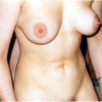 Medium tits of my ex-wife - marga