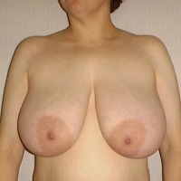 Extremely large tits of my wife - Milf