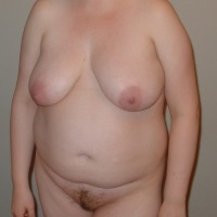 Large tits of my girlfriend - Chubby84