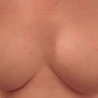 Medium tits of my ex-wife - Emily