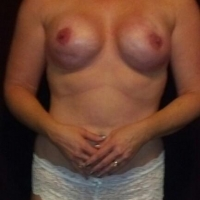 Large tits of my wife - beautiful wife