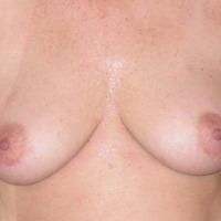 Medium tits of my wife - Jill