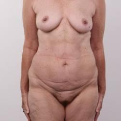 Small tits of my girlfriend - Louisa
