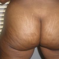 My ass - RDY