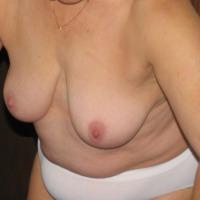 Medium tits of my wife - Deedee